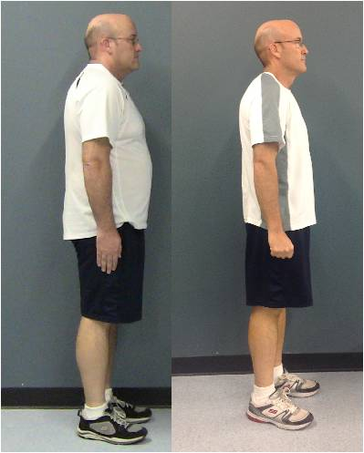 Photo: Chris Pignetti's Before and After Profile